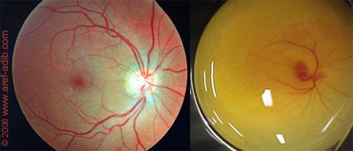 retina_egg500.jpg